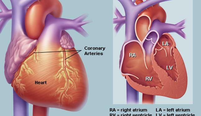 علاجات أمراض القلب في الهند